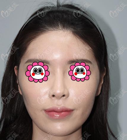 韩国现代美学整形医院黄虎术前照片1