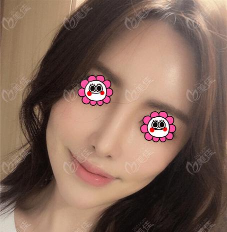 韩国现代美学整形医院黄虎术后照片1