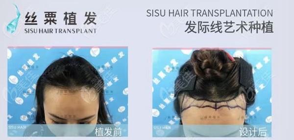 重庆丝粟植发毛作源术前照片1