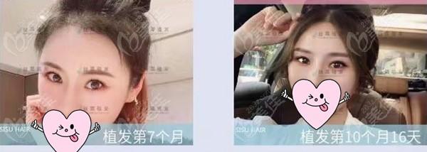 重庆丝粟植发毛作源术后照片1