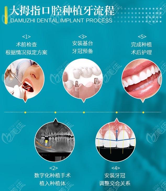 下大拇指的种牙流程