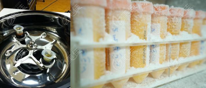 拜沃思·瑞港实验室大容量脂肪冻存技术