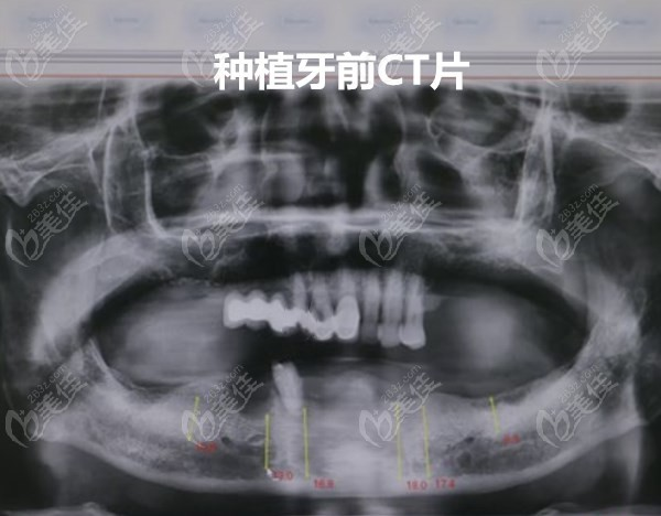 北京美呀植牙口腔门诊部王亮术前照片1