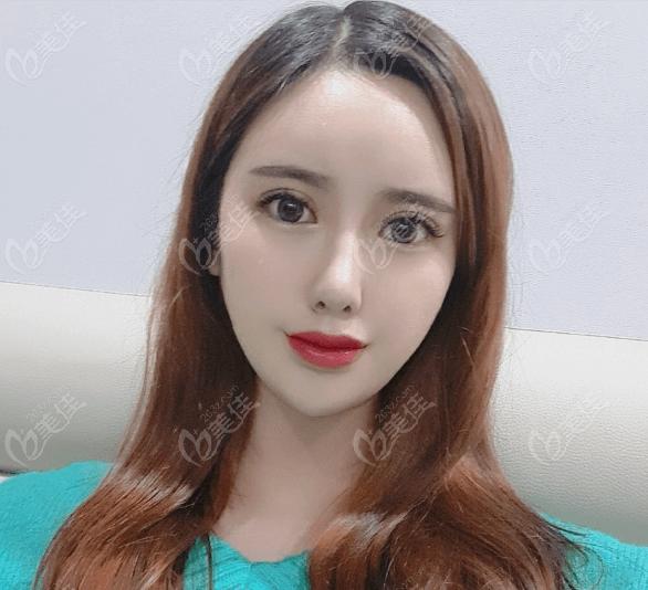 在韩国做肋骨鼻综合和全切双眼皮恢复有一个多月效果基本出来了