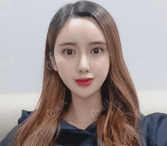 韩国tj张宅镇做的肋骨鼻和全切双眼皮效果