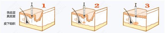 高锷医生注射乔雅登玻尿酸过程