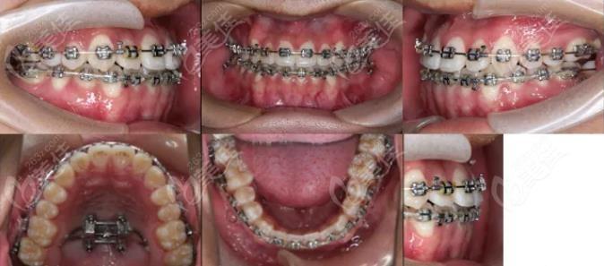 顾客正在整牙中