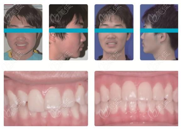 顾客在贝杰口腔矫正牙齿后的前后对比图