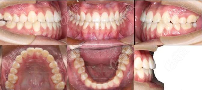 牙齿矫正后的效果展示