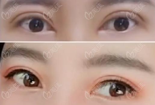 双眼皮一宽一窄的真人修复效果图