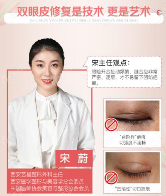 西安艺星医疗美容医院双眼皮修复优势