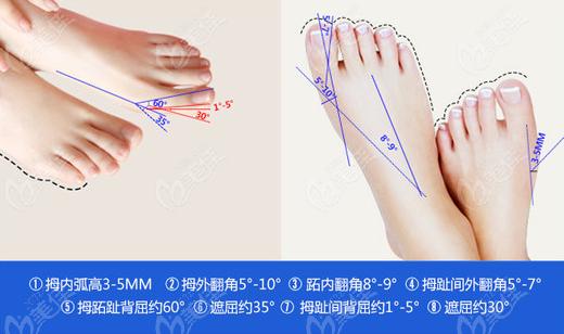 治疗大脚骨哪家医院效果好推荐北京圣嘉新