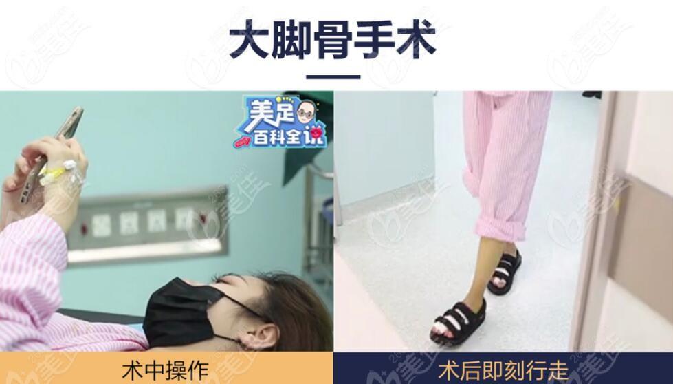 北京圣嘉新医院做微创大脚骨手术即刻能走路