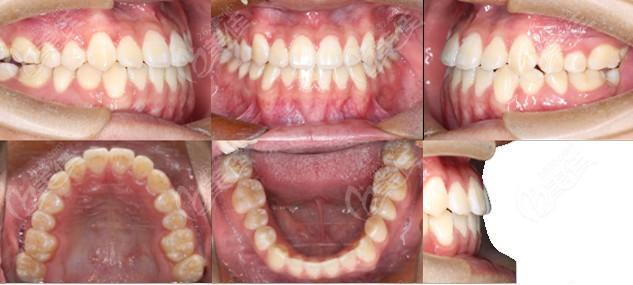 从网友分享的中度地包天戴金属自锁矫正前后的对比照,看银川艾齿矫正牙齿怎么样