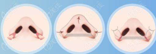 手术缩鼻翼过程示意图