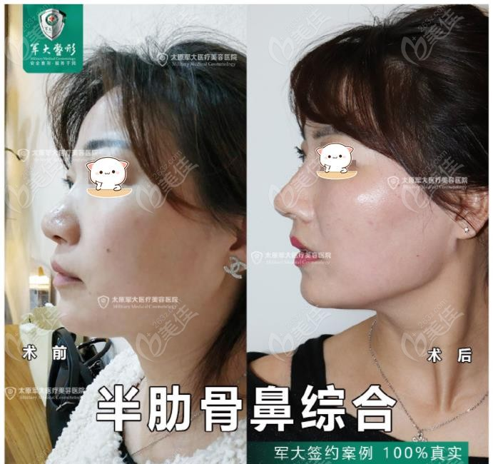 太原军大王海龙半肋骨鼻综合效果图