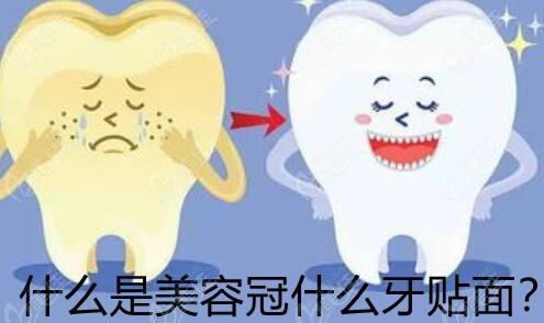什么是美容冠和牙齿贴面