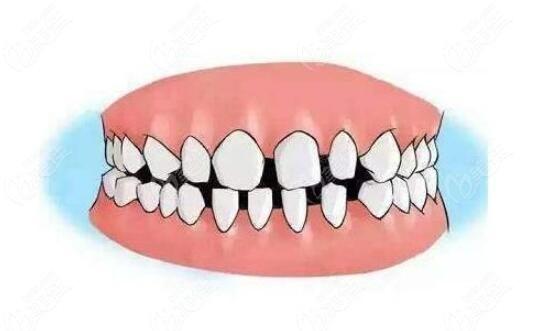 牙齿有缝隙怎么修复