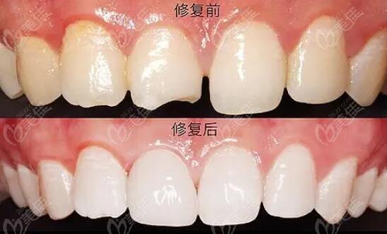 牙齿修复前后对比图