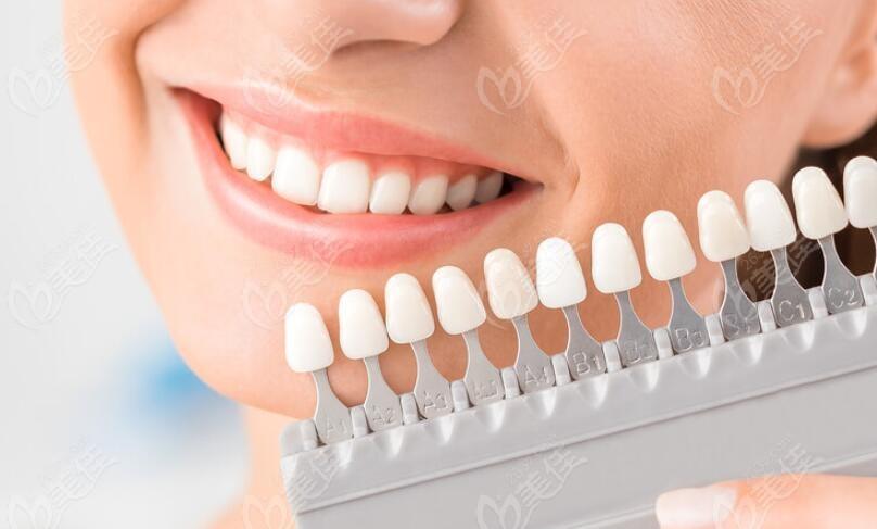 比色板对牙齿颜色的对照