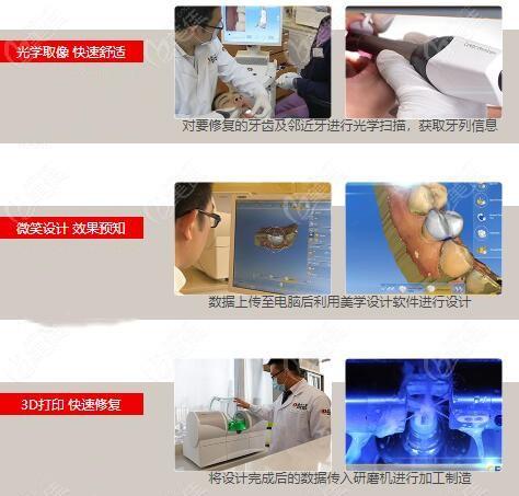 瓷睿刻修复:简单三步当天赋予牙齿第二次新生