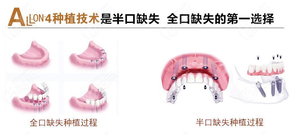 all-on-4种植牙优势