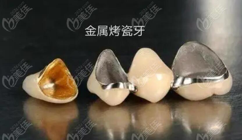 金属烤瓷牙的优缺点