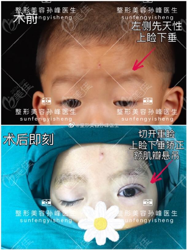 西安国 际上睑下垂矫正手术效果图