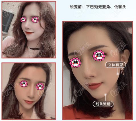 台州艺星做面部脂肪胶填充效果图参考