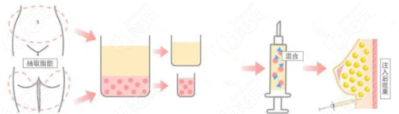 活细胞丰胸手术过程示意图