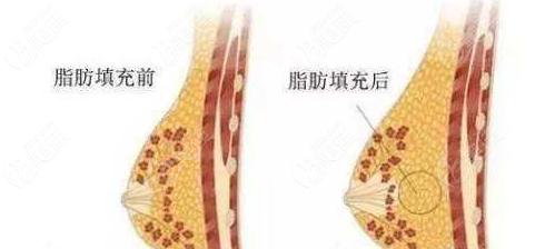 自体脂肪活细胞填充丰胸效果图参考
