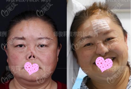 师俊莉医生鼻再造手术的真人实例