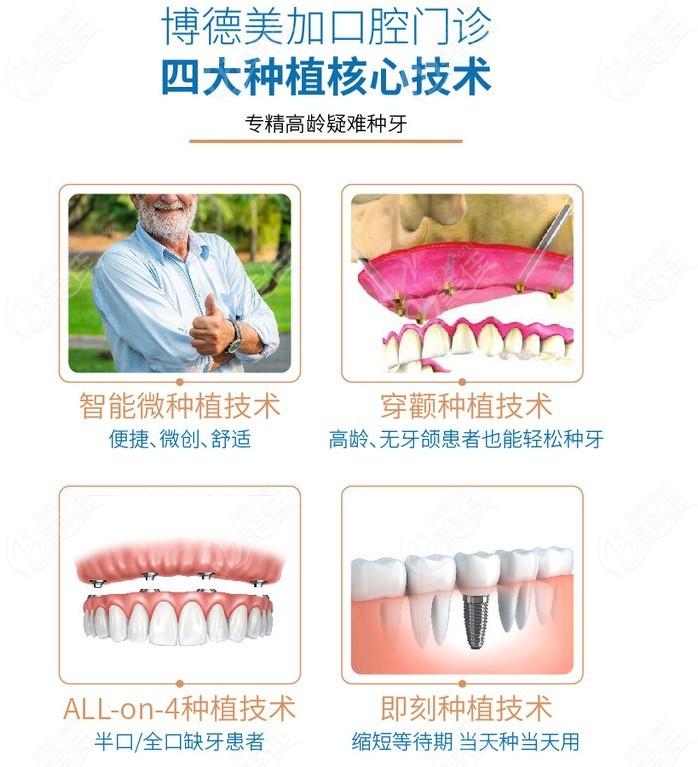 四大特色种植牙技术特点