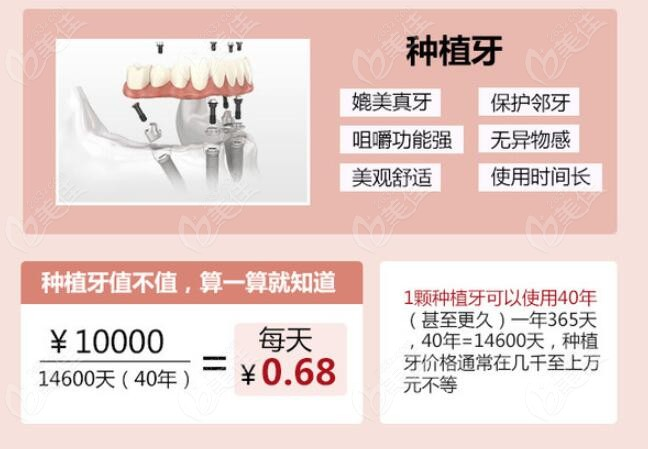 种植牙优势以及价格的介绍