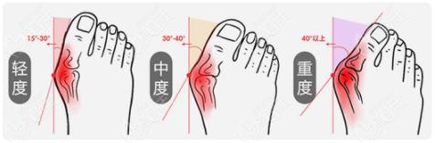大脚骨类型图