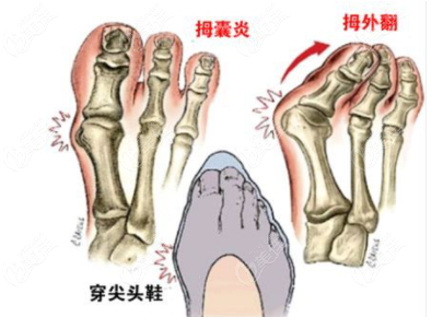 大脚骨该如何治疗呢?