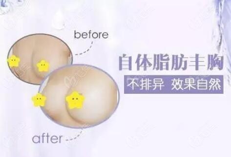 自体脂肪丰胸前后对比照