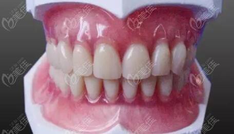 纯钛活动义齿