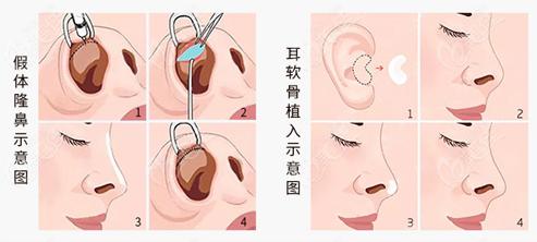 鼻综合手术操作示意图