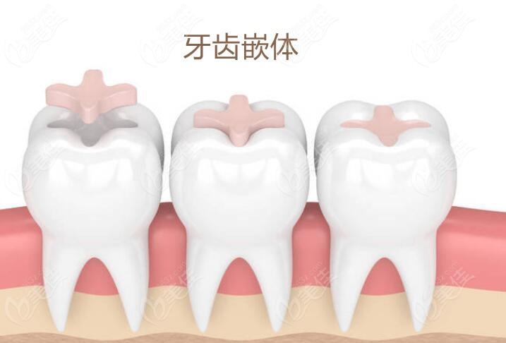 什么是牙齿嵌体