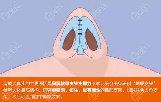 鼻子自带鼻影效 果