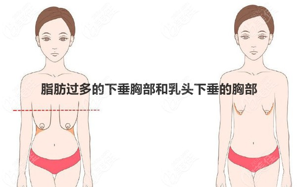 脂肪过多的下垂胸部和乳头下垂的胸部