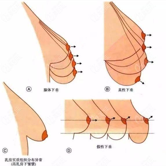 下垂的胸部有不同程度