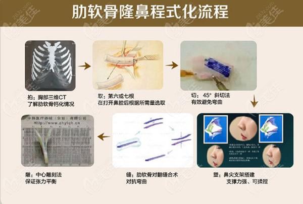 肋软骨隆鼻步骤和过程