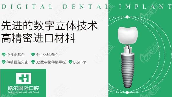 北京皓尔口腔种植牙技术优势