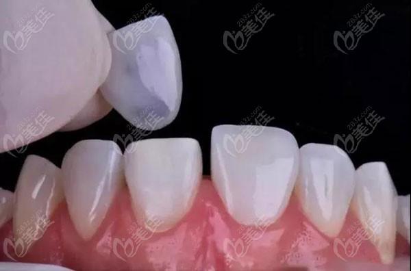 牙齿贴面分为「树脂贴面」和「全瓷贴面」