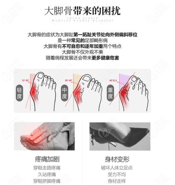大脚骨手术困扰