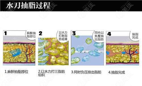 京美整形做水动力吸脂原理
