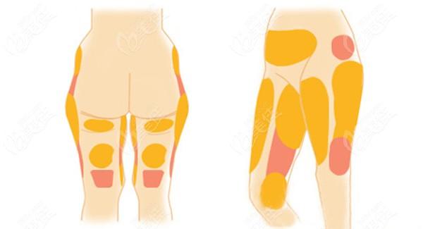 大腿抽脂的部位对费用有影响