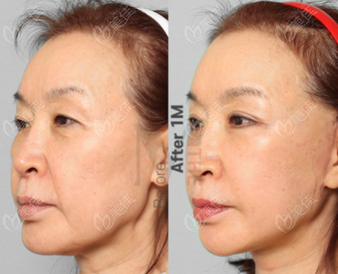 三组韩国迪美整形面部拉皮手术对比照片,价格和维持时间略有不同